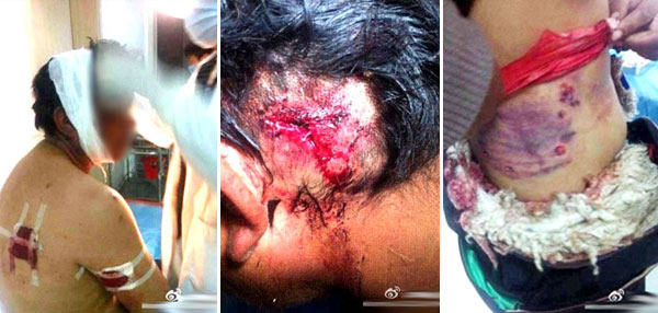 Images of Tibetans wounded