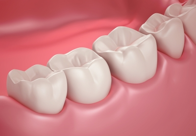 non surgical Gum Therapy