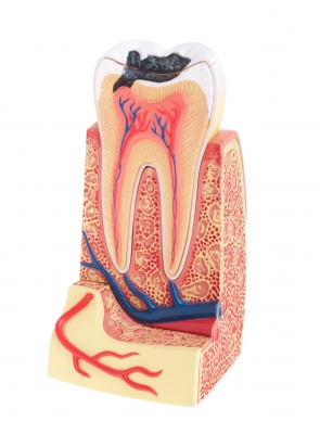 Root Canal Therapy Edmonton