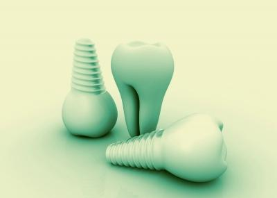 Tooth Replacement Options - Dental Implants