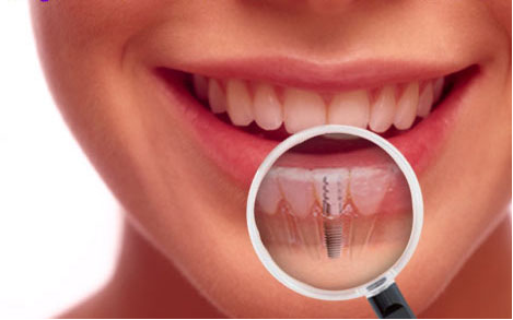 procedures of cosmetic dentistry in Edmonton