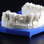 Dental Implant - tooth replacement