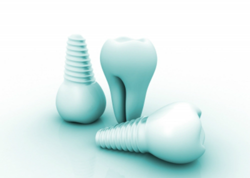 Dental Implant Procedures