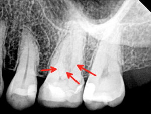 2-Dimensional Dental Radiograph showing 3 canals