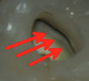 Internal staining underneath a crown