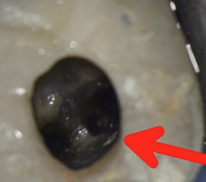 3 Root canals located in a single root