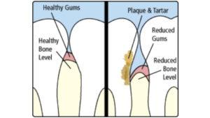 Collegeville Gentle Dentist gum disease treatment