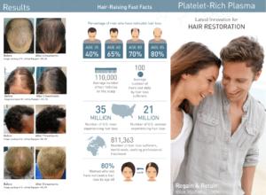 eclipse prp stats 300x220 PRP Hair Restoration Brochures
