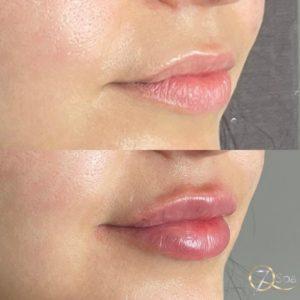 Lip Filler - 7Q Spa & Laser Aesthetics - Glendale, CA