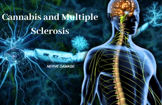 Cannabis and Multiple Sclerosis