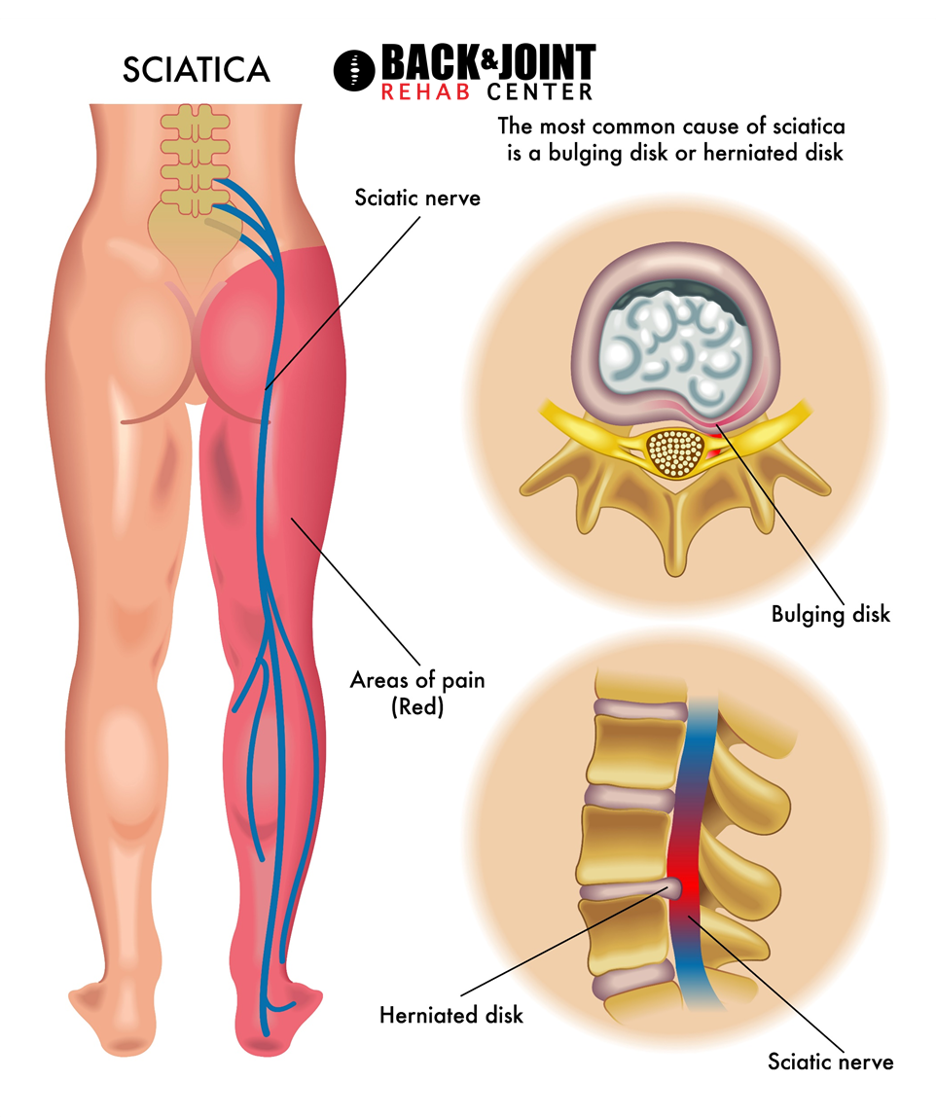 sciatica pain, sciatic nerve pain, sciatica, shooting leg pain