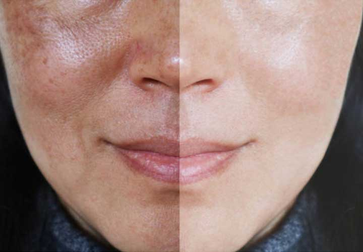 What is melasma & how to manage it?