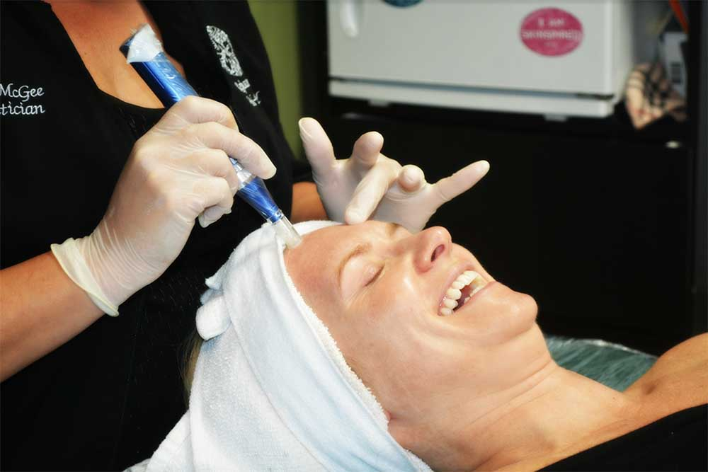Is SkinPen micro-needling right for me?
