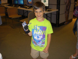 Prosthetic Hand Project - Kiwanis Club of RHE