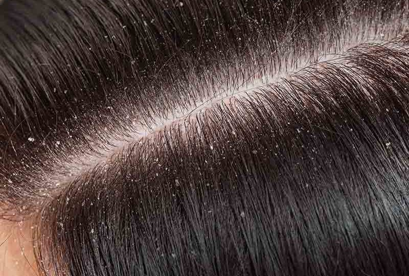 what causes dandruff and treatment
