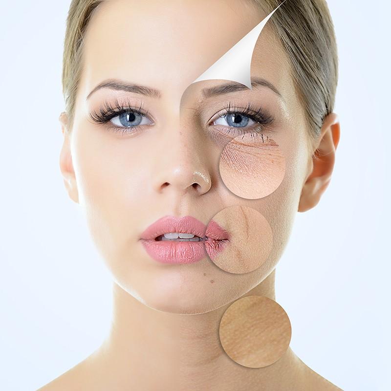 age-corrective-facial