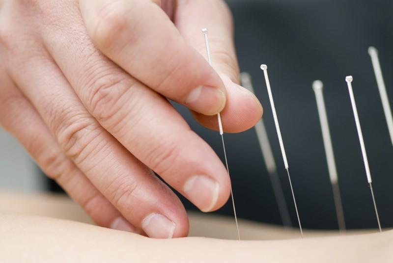 Acupuncture-Treatment-800