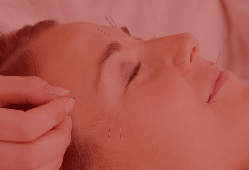 Anti-aging Acupuncture Facial with LED Light Therapy