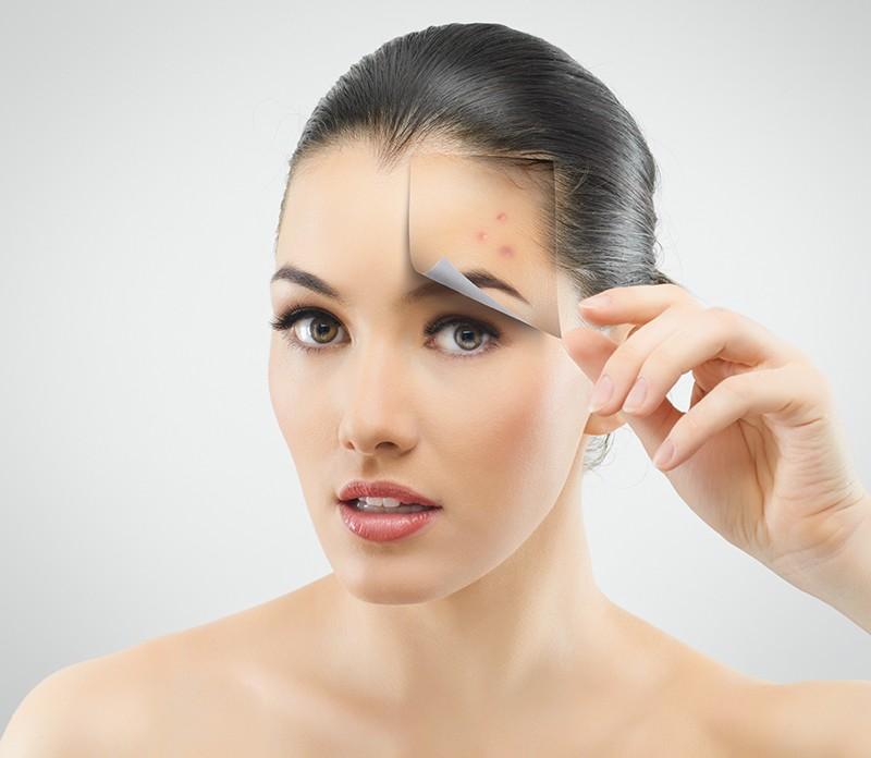 clear-skin-peel