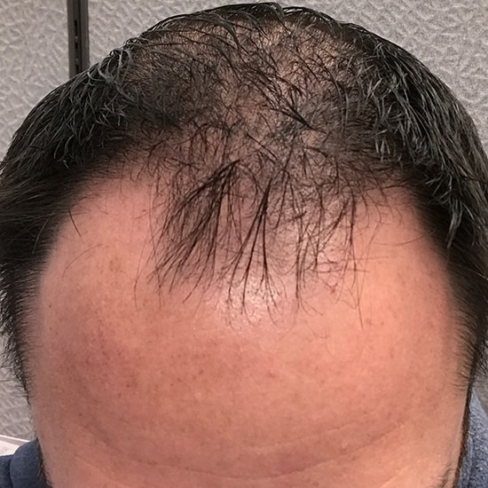 Best Hair Transplant - Hair Transplant Los Angeles