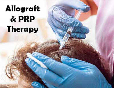 Allograft and PRP Therapies