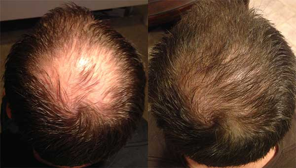 Best Hair Transplant Before & After