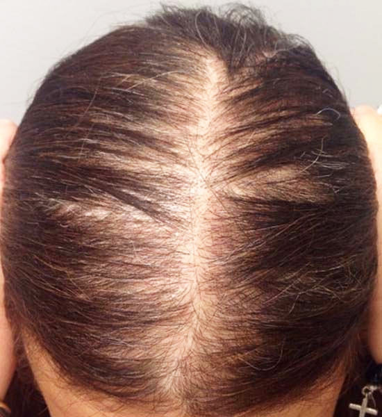 PRP therapy for hair restoration
