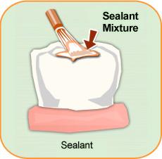 selant