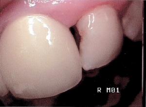 cavity by CJ Sorg via flickr