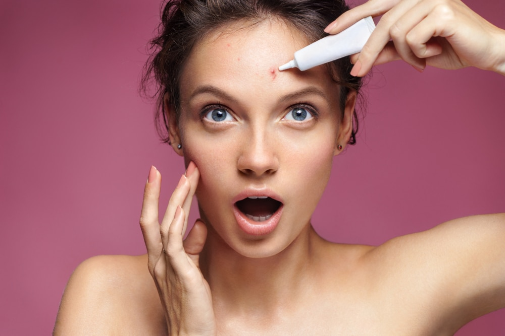 photo of a girl applying cream on the acne scar on her forehead