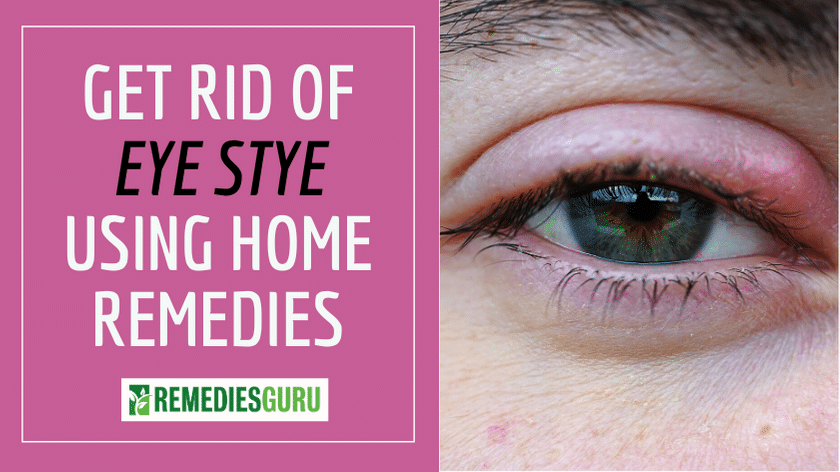 Get Rid of Styes Using Home Remedies
