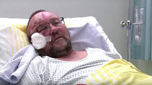 Populist AfD Politician Savagely Beaten in Politically Motivated Attack in Germany