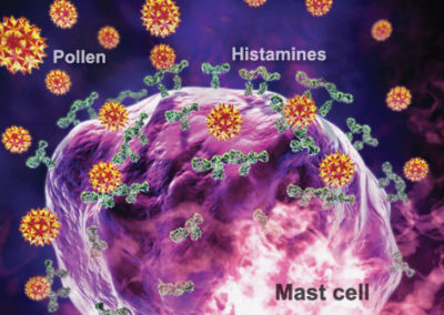 Mast Cell Activation Disorder And Histamine