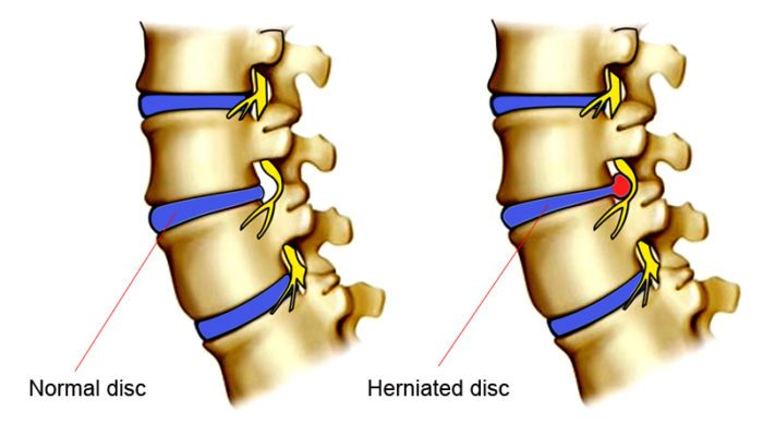 core exercises for herniated disc, core exercises for bulging disc, bulging disc exercise, ruptured disc core exercise, safe ab exercises for herniated disc, herniated disk, herniated disc, exercising with herniated disc