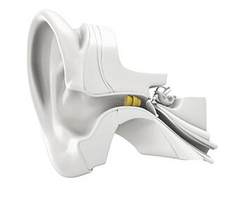 Phonak Lyric sits deep in the ear canal