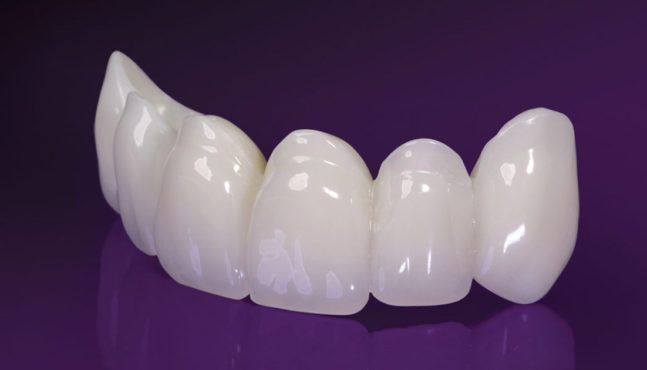 Temporary Teeth To The Rescue!