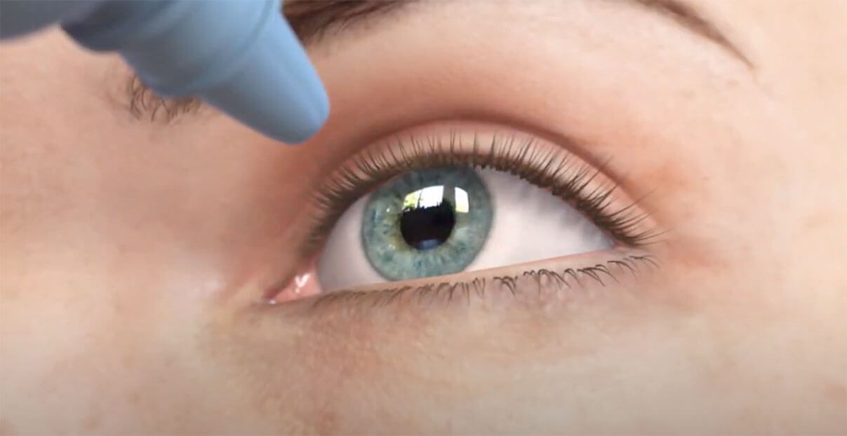 Implantable Contact Lenses with Dr Patrick Versace