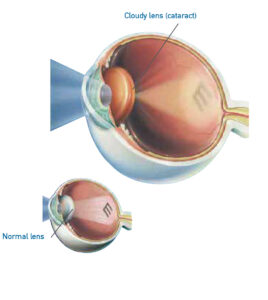 Medical diagram of a cataract