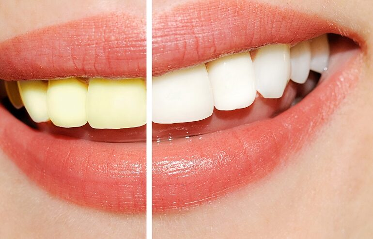 teeth whitening boynton beach