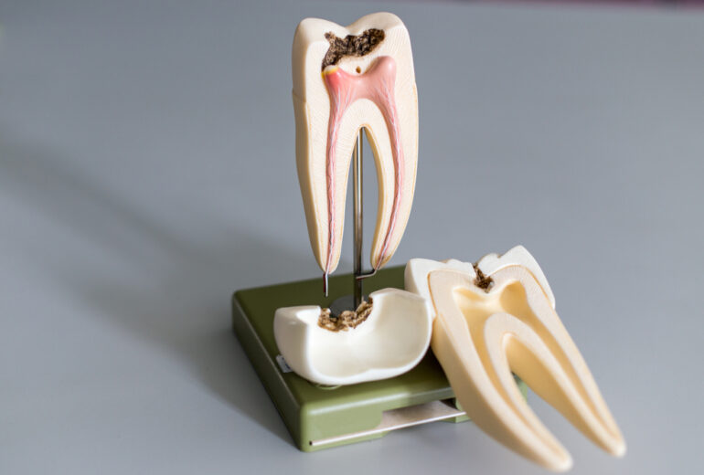 root canal boynton beach