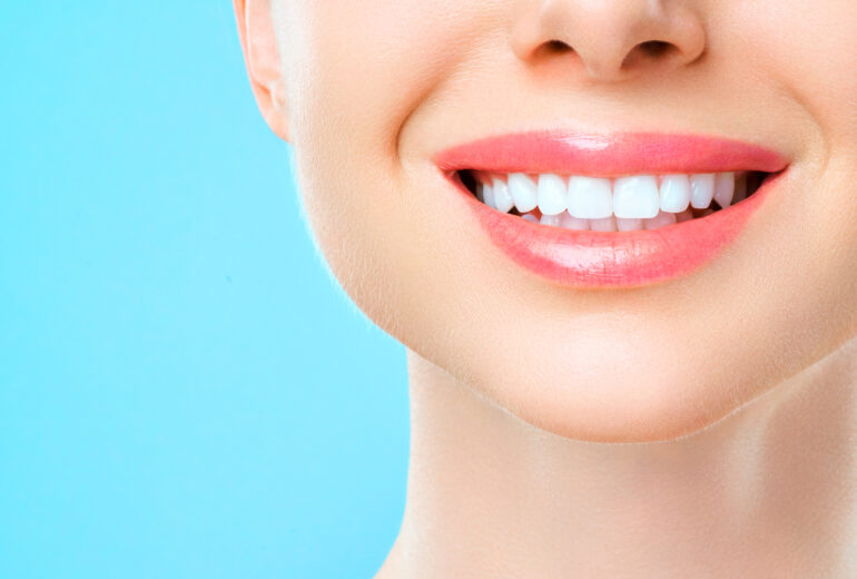 Boynton Beach Teeth Whitening