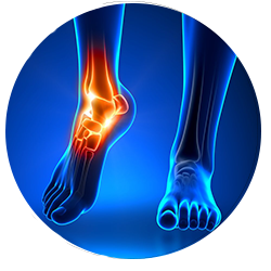 Chiropractor for Ankle Pain