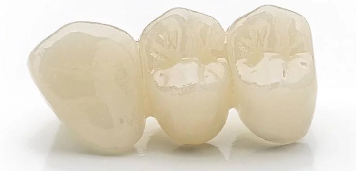 zirconia - porcelain 1