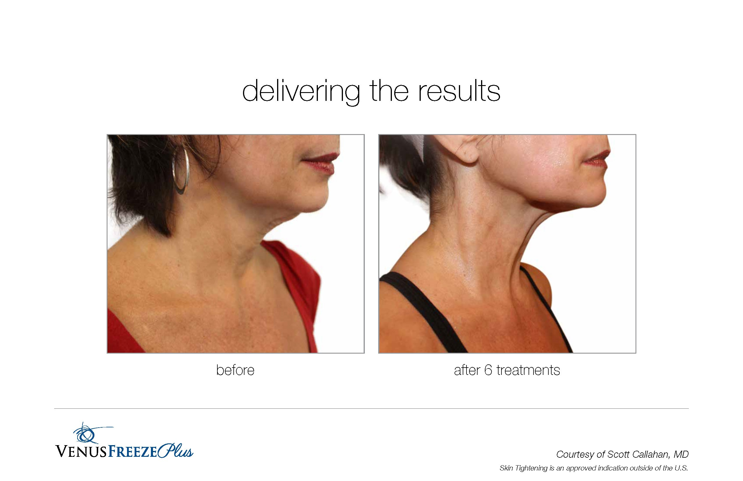 Body Contouring Sharpens Chin and Jawline