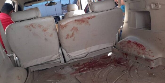 Un Fuerte Accidente Automovilístico Se Registró En La Guajira