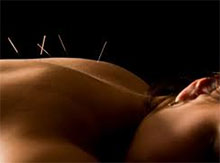 Integrative Acupuncture & Services