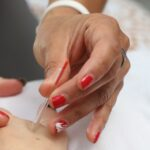 Acupuncture dry needling overland park kansas 66210 traditional chinese acupuncture meridian therapy