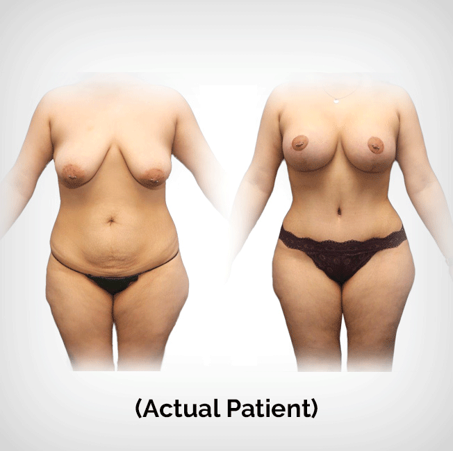 Breast Lift Tummy Tuck Plastic Surgery Payment Plans