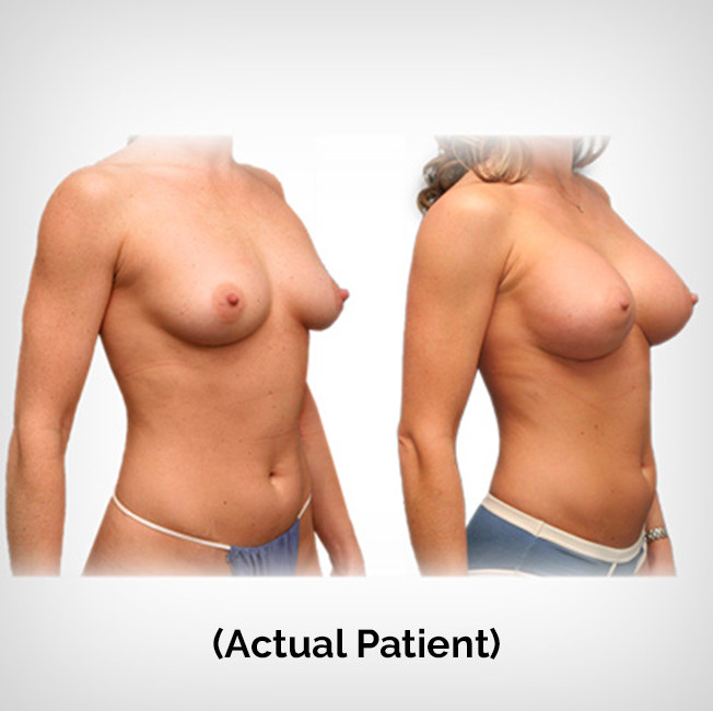 Patient Before After Breast Augmentation Plastic Surgery Payment Plans