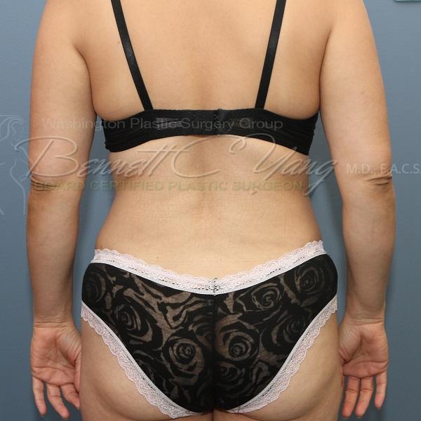 Back Fat Removal Liposuction Plastic Surgery Payment Plans
